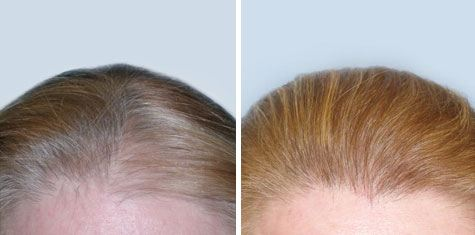 hair transplant pictures of women frontal area of scalp FUT