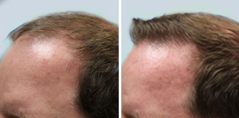 hair restoration before and after gallery ARTAS System